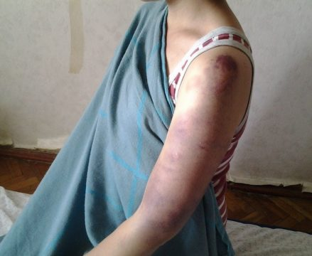 Prayer Update: Batima Recovering After Being Beaten For Jesus
