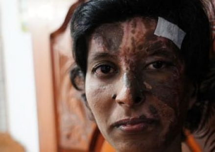 'There was fire everywhere'—why this wounded Sri Lankan believer is singing songs of hope